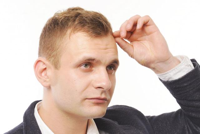 男性発毛治療