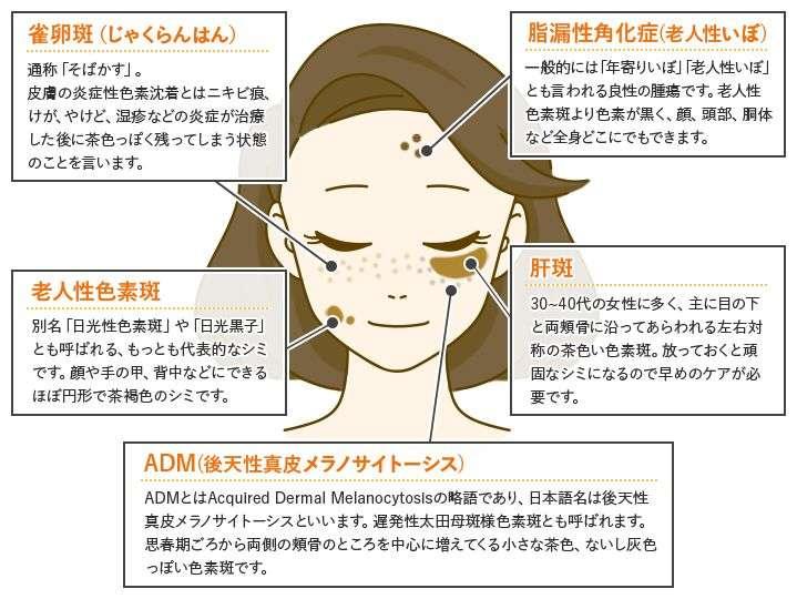 シミ治療と顔の部位別の症状紹介